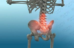 股関節腰痛