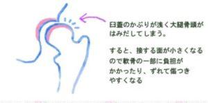 臼蓋(きゅうがい)形成不全