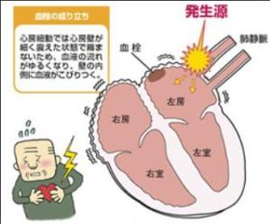 出典:日本心臓財団