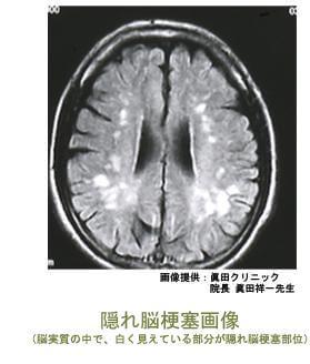 隠れ脳梗塞