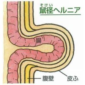 脱腸初期症状