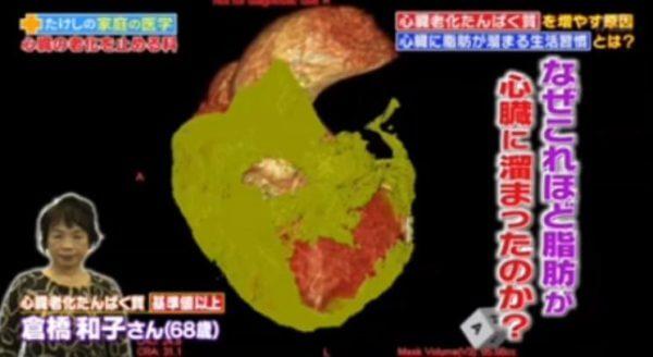 心臓老化物質多タイプ