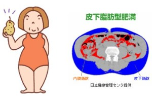 皮下脂肪型肥満
