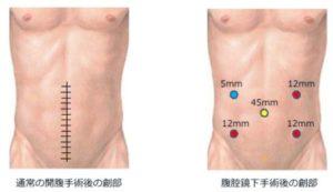 腹腔鏡下手術跡
