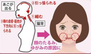 顔のたるみの意外な原因