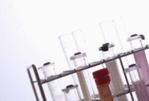 遺伝子検査のメリット・デメリット