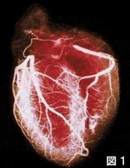 微小血管狭心症