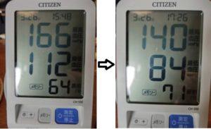 高血圧とアーシング