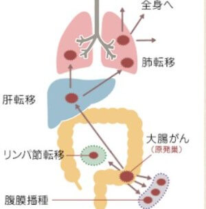 出典:大腸がん情報サイト