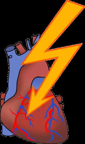 隠れ心臓病
