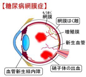 出典:視力回復研究ノート