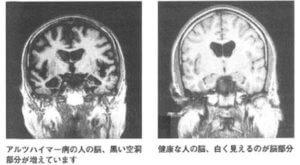 若年性アルツハイマー病とは?