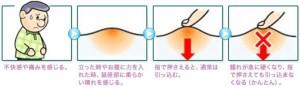脱腸の症状