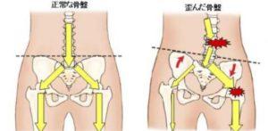 股関節の異常は腰痛の原因に