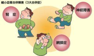 糖尿病3大合併症