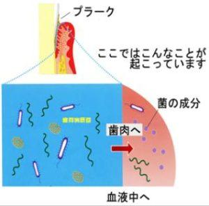 歯周病菌が血管に入り込む原因