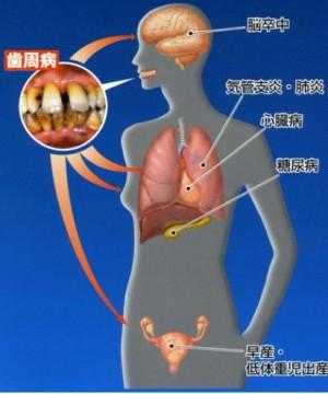出典:新潟駅前歯科クリニック